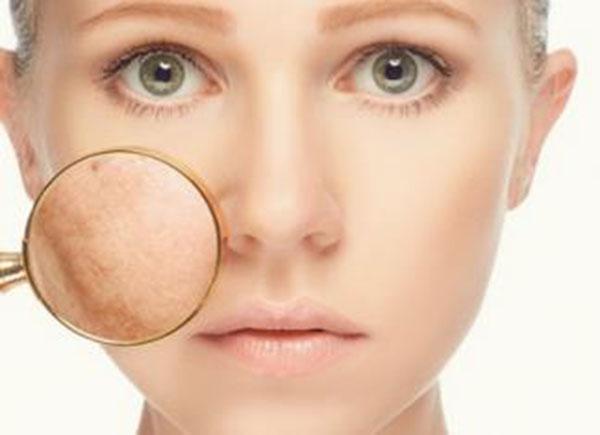 Nám da mặt là gì? Cách chữa trị nám da mặt hiệu quả nhất tại nhà