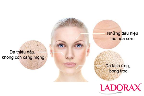 5 cách chăm sóc da khô hiệu quả bạn cần biết