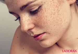 Nám và tàn nhang khác nhau như thế nào? Làm sao để điều trị tận gốc?