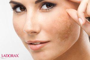 cách trị sạm da mặt đơn giản