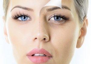 cách chữa thâm quầng mắt tại nhà