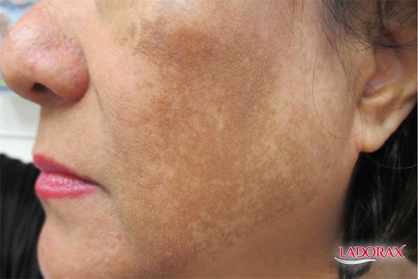 cách trị nám da mặt lâu năm